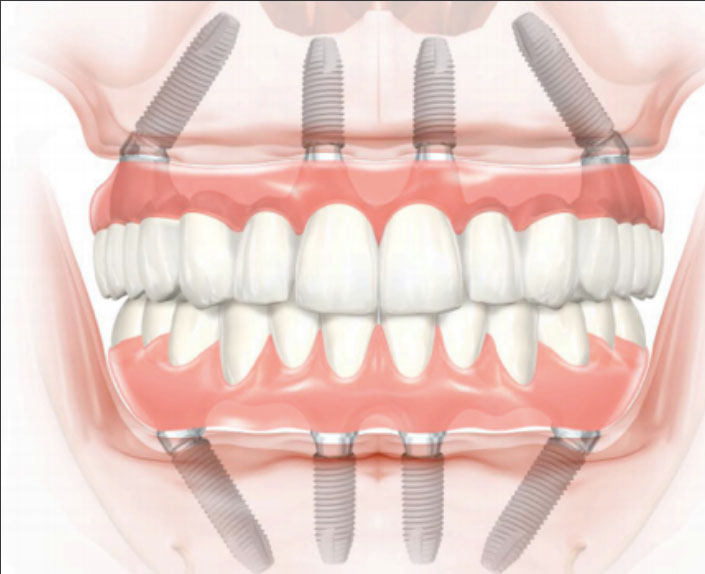 implantes all on 4 clínica Castelo dentista