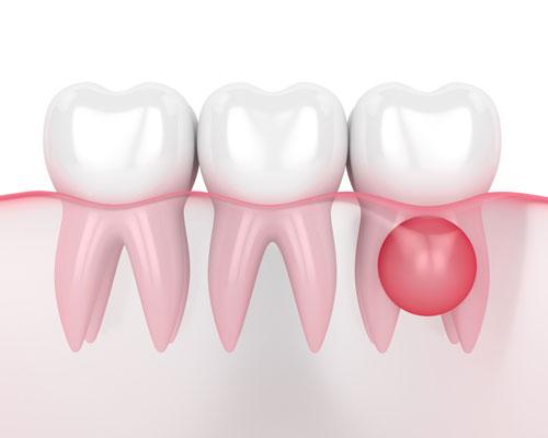 Imagen síntoma enfermedades periodontales clínica Castelo dentista