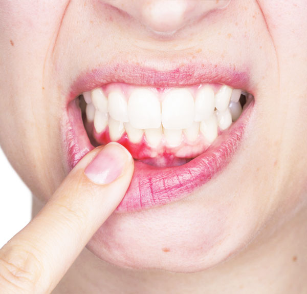 gingivitis clínica Castelo dentista