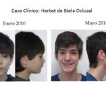 Herbst de Biela Oclusal: antes y después