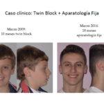 Twin Block y aparatologia fija: antes y después