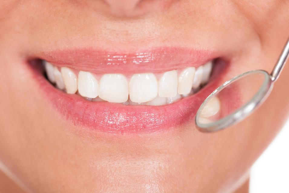 Como cuidar el esmalte dental