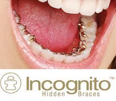 Ortodoncía Lingual de Incognito
