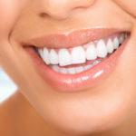 Castelo-consejos para tener unos dientes bonitos