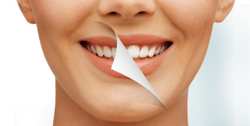 Castelo-precio del blanqueamiento dental