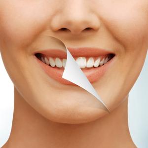 Castelo-precio del blanqueamiento dental-2