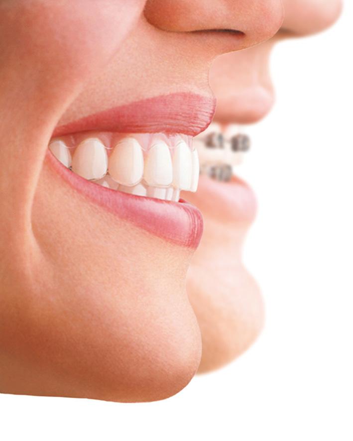 castelo-ortodoncia invisible-invisalign-dest