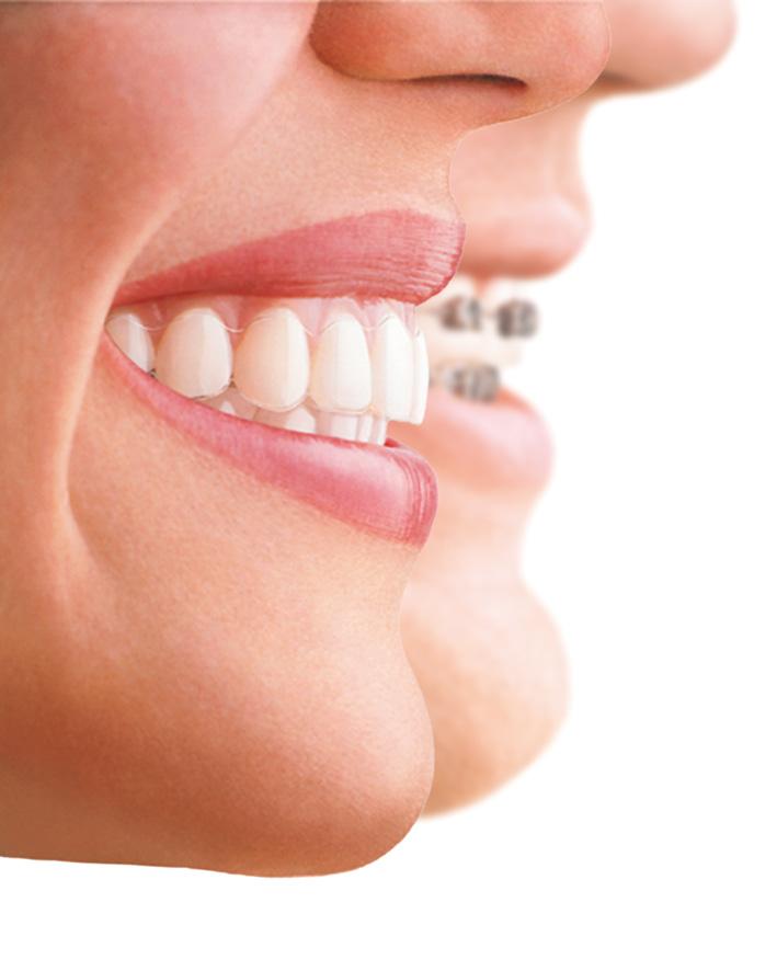 castelo-ortodoncia invisible-invisalign