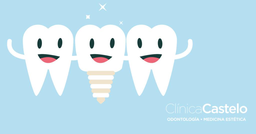 Qué son los implantes dentales-castelo