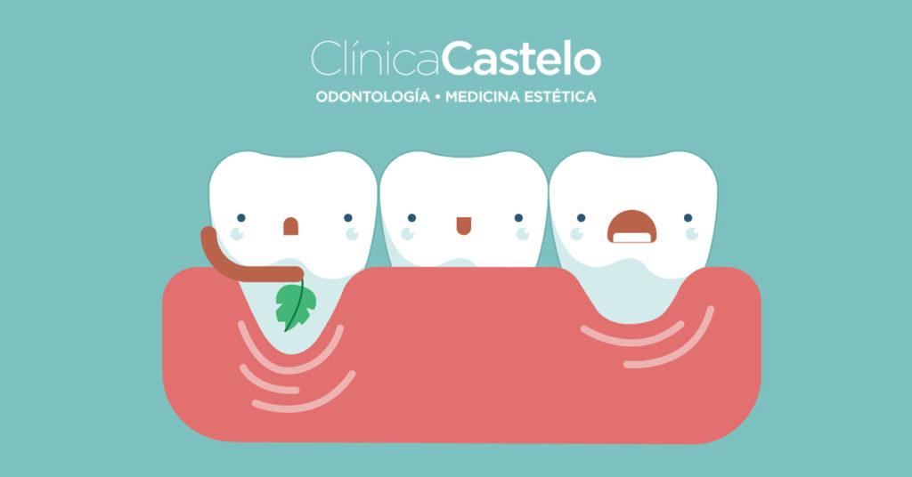 qué es la sonrisa gingival-Clínica Castelo