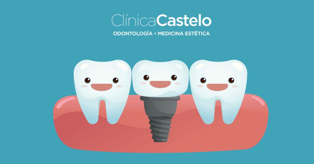 tipos de implantes dentales-clinica castelo