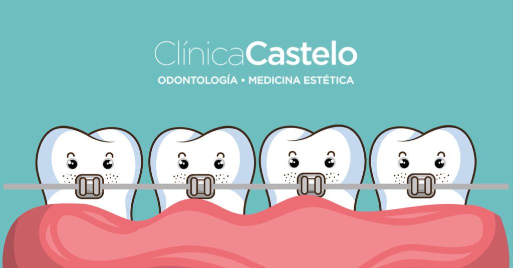 que es una ortodoncia-clínica castelo