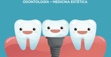 tipos de implantes dentales-clinica castelo-dest