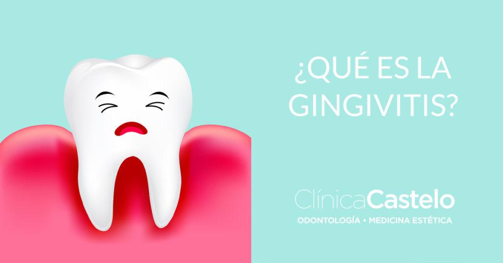qué es la gingivitis-castelo