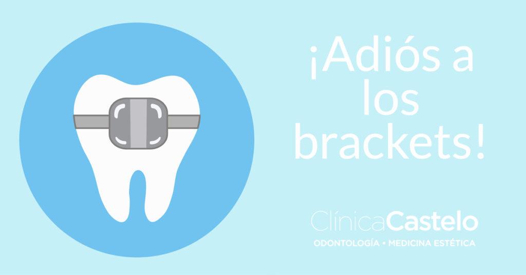 cómo tener dientes perfectos-clinica castelo