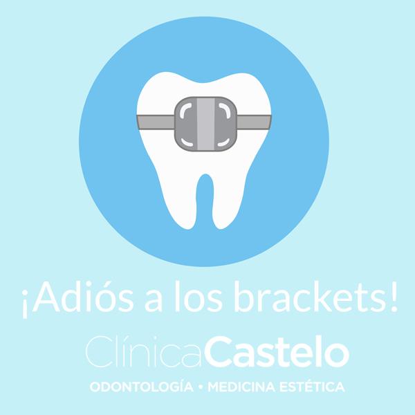 como tener dientes perfectos-clinica castelo-dest