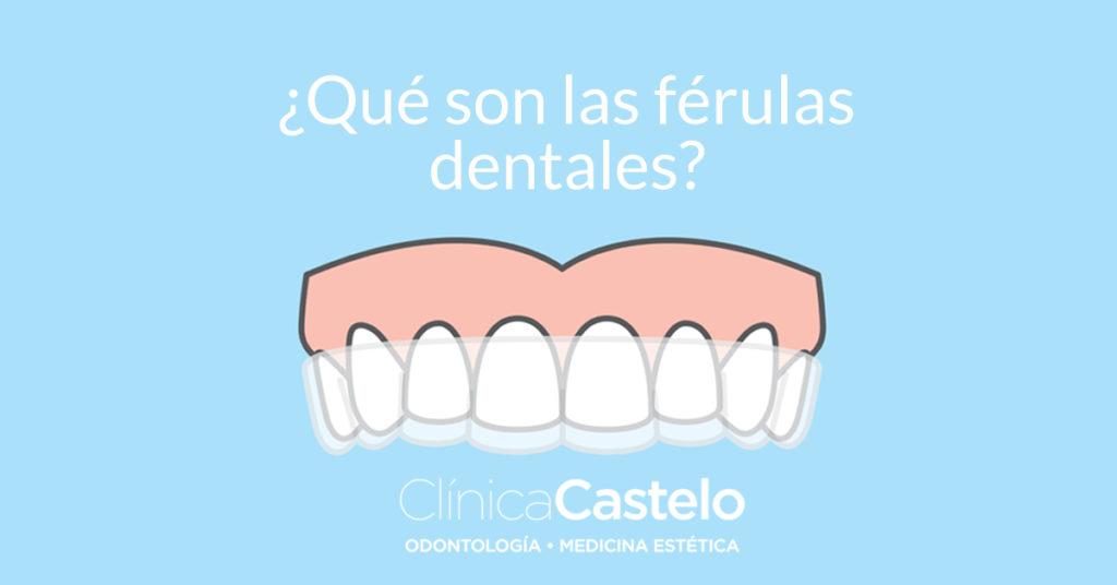 ¿que son las férulas dentales-clínica castelo
