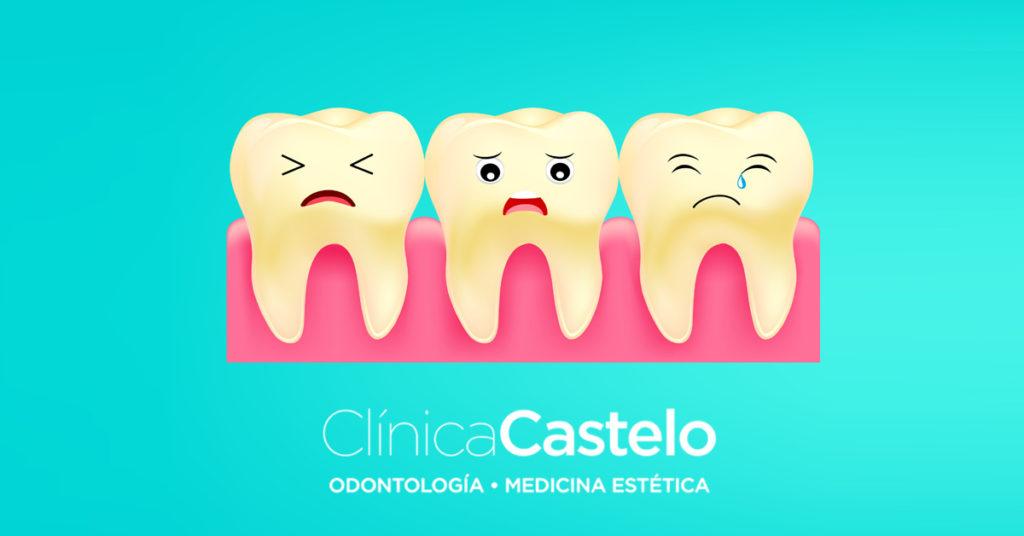 manchas en los dientes por tetriciclina-Clínica Castelo