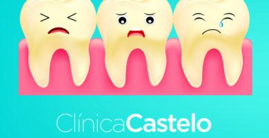 manchas en los dientes por tetriciclina-Castelo