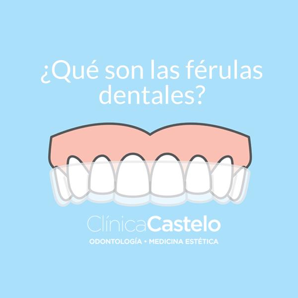 qué son las férulas dentales-clinica castelo-dest