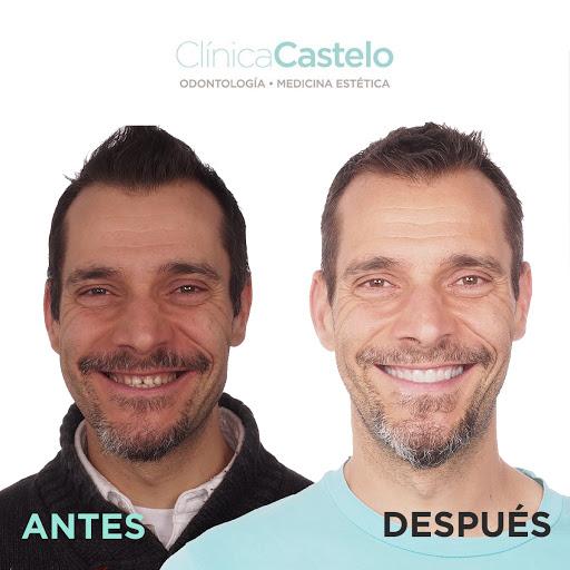 Diseño de Sonrisa Digital en Madrid - DSD - Antes y después. Clínica Castelo. Madrid