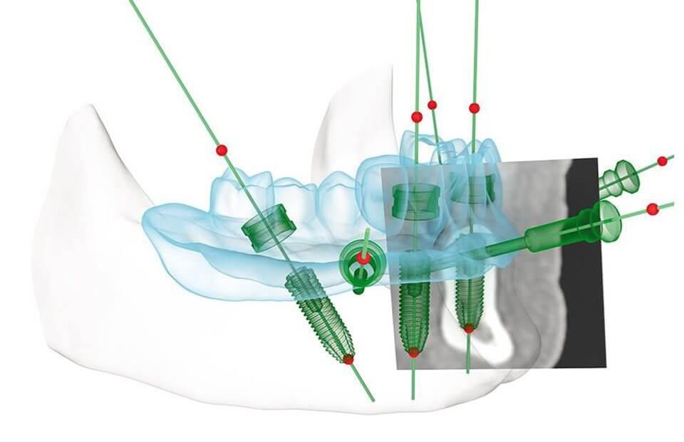 Implantes Dentales con Cirugía guiada por ordenador en Madrid con Clínica Castelo