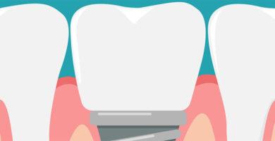 Injerto de hueso dental