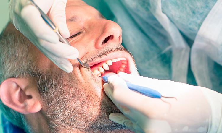 El sarro es uno de los principales problemas ocasionados por el descuido de nuestra higiene bucal. Te contamos en qué consiste y cómo evitarlo.