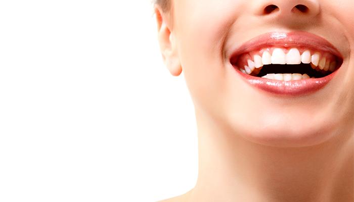 siete motivos clave para elegir hacerte un blanqueamiento dental