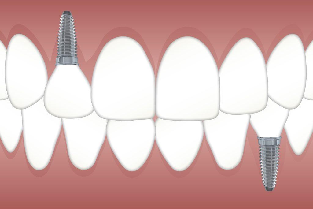 No tengas miedo a los implantes dentales ponte en manos de los mejores