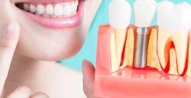 implantes dentales y osteoporosis en Clínica Castelo
