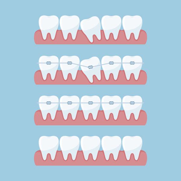 como funcionan brakets autoligables clínica Castelo dentista