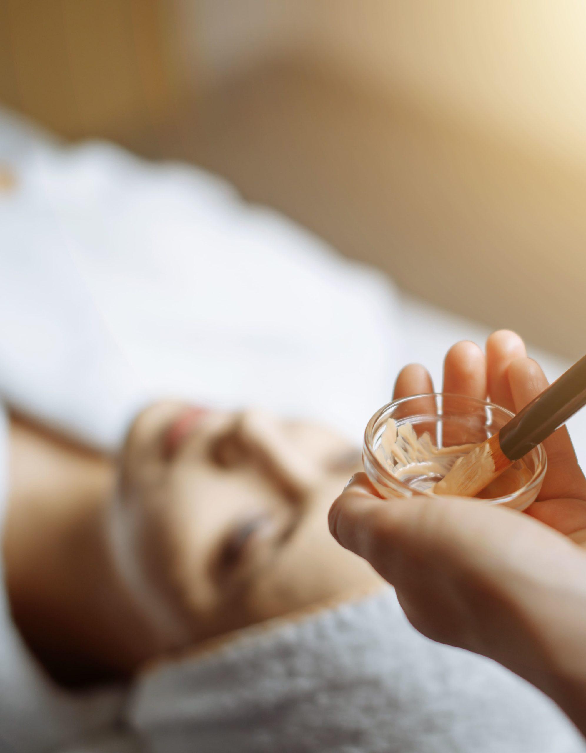 peeling quimico clínica Castelo dentista