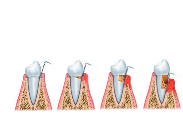 tratamiento periodoncia clínica Castelo dentista
