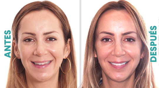 Antes y después Clínica Castelo
