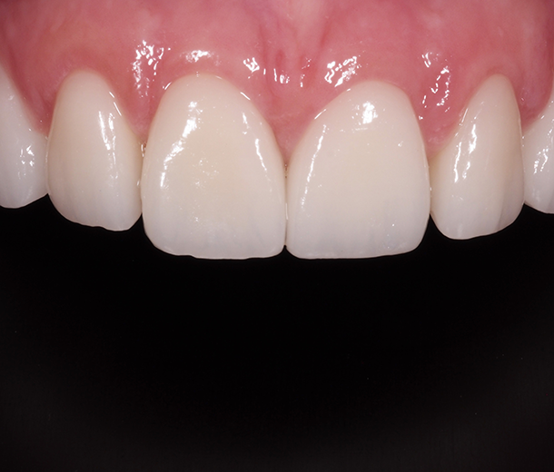 CARILLAS DENTALES clínica Castelo dentista