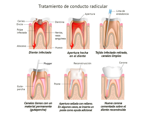 endodoncia clínica Castelo dentista