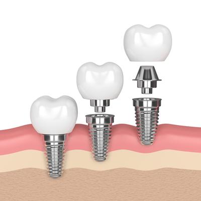Imagen protesis dental clínica Castelo dentista