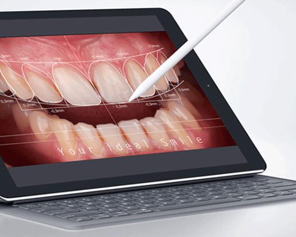 diseño de sonrisa clínica Castelo dentista